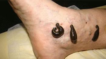 Medical Leech Treatments